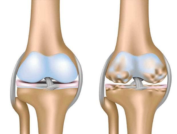 La regeneración natural de rodillas cartílagos